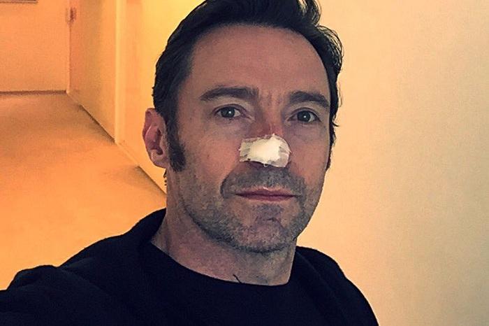https: img-o.okeinfo.net content 2017 02 14 33 1617898 foto-takut-kena-kanker-kulit-hugh-jackman-rajin-pakai-sunscreen-mpVfvehzwF.jpg