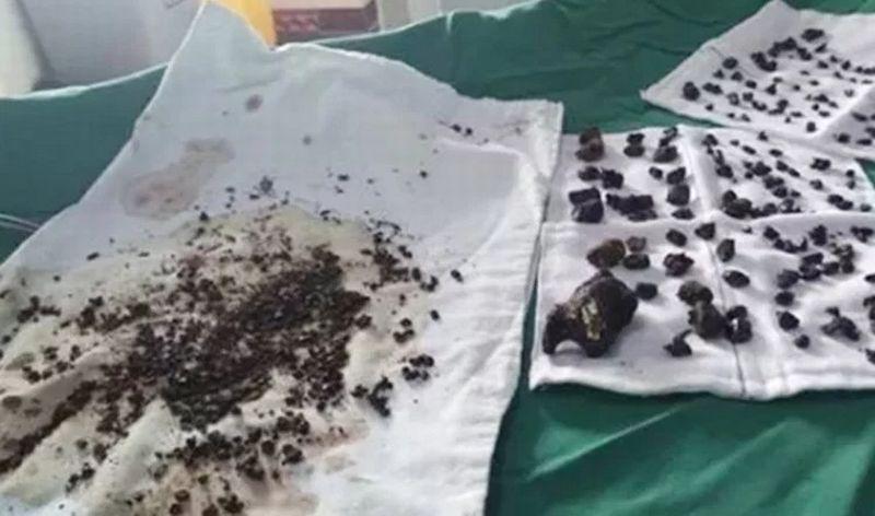 https: img-o.okeinfo.net content 2017 07 22 18 1741931 ngeri-lebih-dari-200-batu-ditemukan-di-perut-perempuan-asal-china-akibat-tak-pernah-sarapan-xyIhBiedlE.jpg