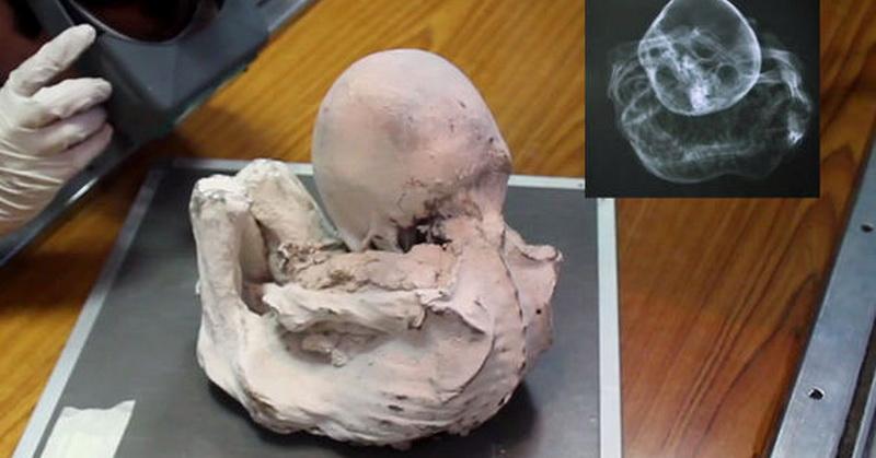 https: img-o.okeinfo.net content 2017 08 28 56 1764954 mumi-bayi-ditemukan-di-peru-merupakan-bayi-alien-benarkah-nNWVUlsOwh.jpg