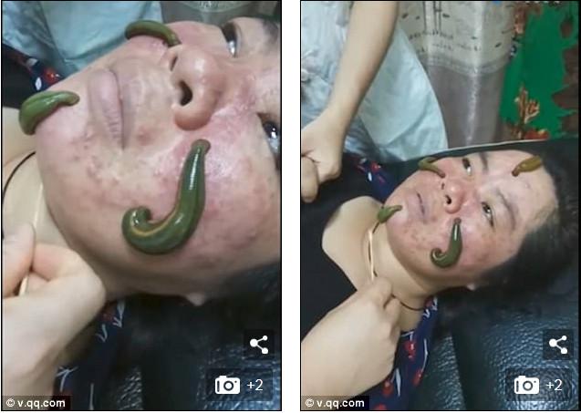 https: img-o.okeinfo.net content 2017 10 30 194 1804804 ada-ada-saja-wanita-di-china-lakukan-facial-lintah-untuk-sembuhkan-jerawat-gimana-rasanya-ya-esx1DG3Rqq.jpg