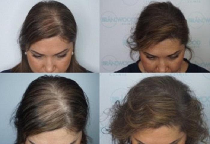 https: img-o.okeinfo.net content 2018 01 09 194 1842602 kebotakan-hancurkan-hidupnya-wanita-ini-rela-habiskan-rp454-juta-demi-rambut-tebal-q0m9Z1Xr1T.jpg