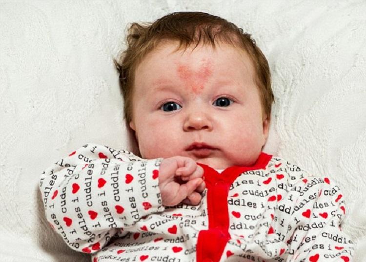 https: img-o.okeinfo.net content 2018 02 14 481 1859484 bayi-bayi-yang-lahir-di-hari-valentine-satu-diantaranya-punya-tanda-lahir-hati-di-dahi-tMLz9JNcAY.jpg