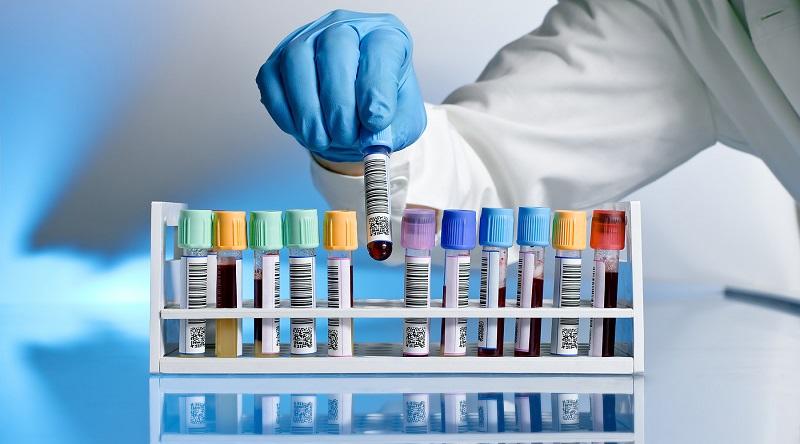 https: img-o.okeinfo.net content 2018 02 27 481 1865472 obat-bioteknologi-semakin-dibutuhkan-dan-permintaan-meningkat-SMGEJ2zm5n.jpg