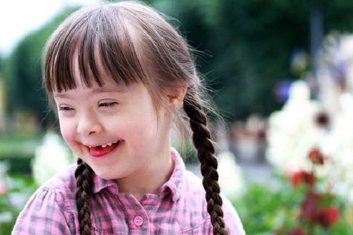 https: img-o.okeinfo.net content 2018 03 28 481 1879069 penting-sederet-hal-ini-diperlukan-anak-down-syndrome-9mDWaBFmDb.jpg