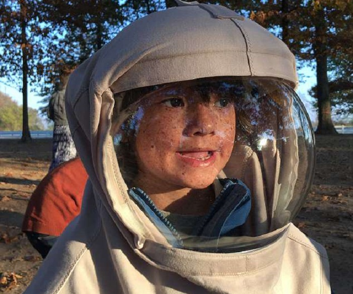 https: img-o.okeinfo.net content 2018 04 16 481 1887189 perjuangan-bocah-7-tahun-yang-idap-alergi-matahari-setiap-hari-pakai-baju-astronot-CHFoHDR6sU.jpg