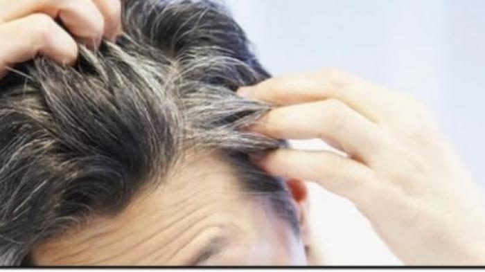 https: img-o.okeinfo.net content 2018 05 08 56 1896032 penyebab-tumbuhnya-uban-di-rambut-karena-emosi-38OsOEnIOu.jpg