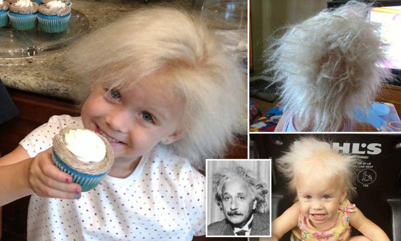 https: img-o.okeinfo.net content 2018 05 09 481 1896145 kena-penyakit-langka-gadis-5-tahun-ini-punya-model-rambut-einstein-UHMPi0fRaD.jpg