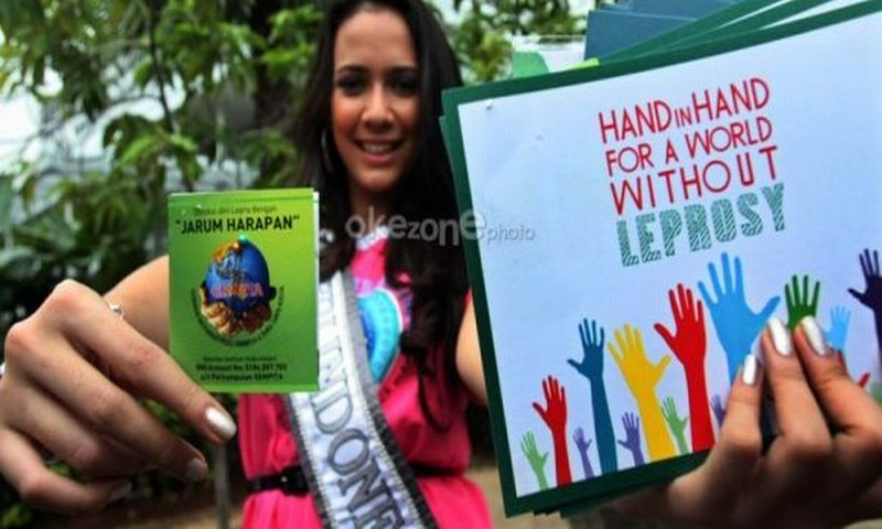 https: img-o.okeinfo.net content 2018 05 13 481 1897552 indonesia-ranking-3-penderita-kusta-di-dunia-yuk-ketahui-penyebabnya-LJQ1EbL3ZY.jpg