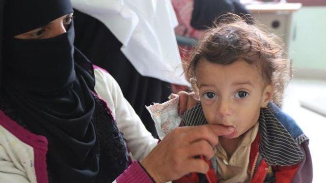 https: img-o.okeinfo.net content 2018 09 19 18 1952493 5-juta-anak-di-yaman-berisiko-kelaparan-akibat-konflik-berkepanjangan-4JE0Bo7dtB.jpg