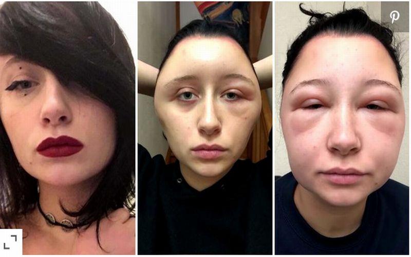 https: img-o.okeinfo.net content 2018 12 03 481 1986258 alergi-cat-rambut-kepala-wanita-ini-membesar-2-kali-lipat-MUiqzX9uL9.jpg