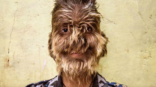 https: img-o.okeinfo.net content 2019 02 28 481 2024205 kisah-anak-lelaki-pengidap-sindrom-werewolf-sekujur-tubuhnya-dipenuhi-rambut-sEjcQOLvwH.jpg
