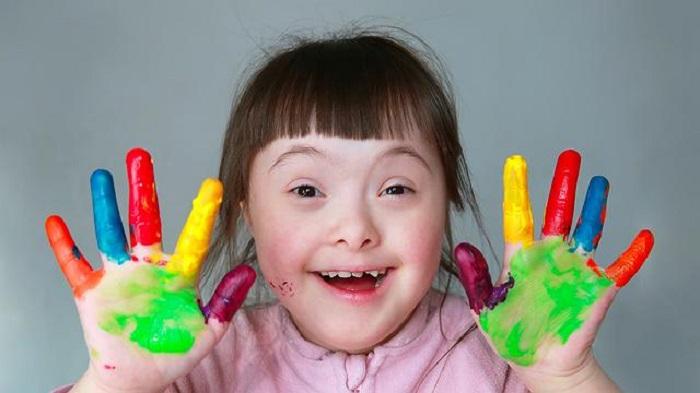 https: img-o.okeinfo.net content 2019 03 21 481 2033171 hari-down-syndrome-sedunia-pahami-perbedaannya-dengan-autis-DBgrEL4BCb.jpg