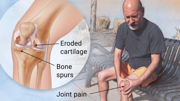 https: img-o.okeinfo.net content 2019 04 12 481 2042749 berbeda-dengan-osteoporosis-osteoartritis-bisa-sebabkan-disabilitas-zNqZVpoBDp.jpg