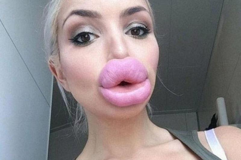 https: img-o.okeinfo.net content 2019 04 15 611 2043542 viral-tren-filler-bibir-bintang-porno-tambah-seksi-atau-seram-GqbGyXd2uf.jpg