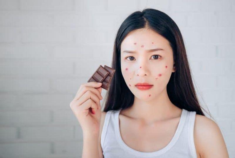 https: img-o.okeinfo.net content 2019 04 16 298 2044065 makan-cokelat-kebanyakan-bikin-jerawatan-kErTc0gx4v.jpg