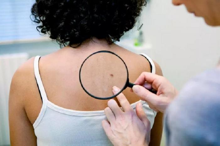 https: img-o.okeinfo.net content 2019 05 01 481 2050290 jangan-diremehkan-6-jenis-benjolan-pada-kulit-ini-bisa-berbahaya-FWfw5HYVje.jpg