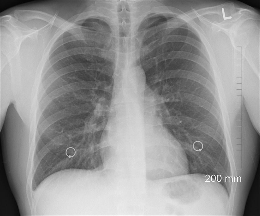 https: img-o.okeinfo.net content 2019 05 09 481 2053326 cegah-penyebaran-tuberkulosis-dengan-rajin-memakai-masker-uTToRJ2FDz.jpg