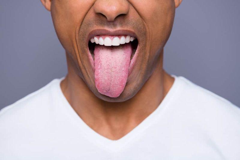 https: img-o.okeinfo.net content 2019 05 20 481 2057875 6-penyebab-kanker-lidah-yang-mungkin-anda-tak-tahu-AEhEfA4Epf.jpg