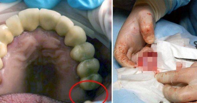 https: img-o.okeinfo.net content 2019 06 11 18 2065334 dokter-temukan-gigi-yang-hilang-tumbuh-di-testis-seorang-remaja-oIqbm2k4jh.jpg