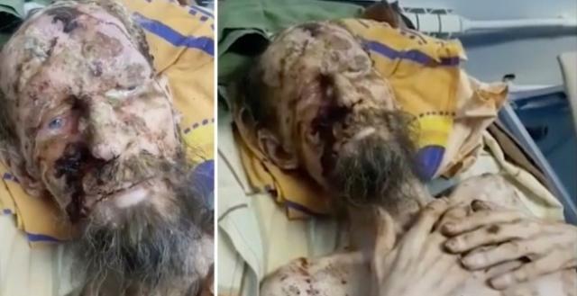 https: img-o.okeinfo.net content 2019 06 26 18 2071269 selamat-dari-serangan-beruang-pria-ini-terlihat-seperti-mumi-OqM8fbL1B7.jpg