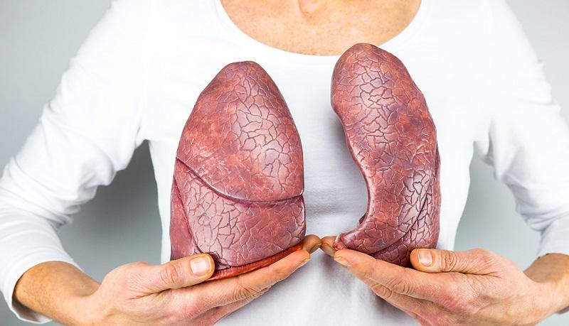 https: img-o.okeinfo.net content 2019 07 26 481 2083728 atezolizumab-obat-imunoterapi-baru-yang-tingkatkan-harapan-hidup-pasien-kanker-paru-paru-DNqeK1n2RD.jpg