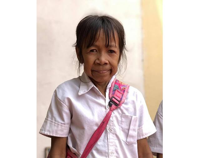 https: img-o.okeinfo.net content 2019 08 12 18 2091081 gadis-10-tahun-berwajah-nenek-nenek-saya-ingin-wajah-cantik-saya-ingin-dioperasi-4ImkbdlLIt.jpg