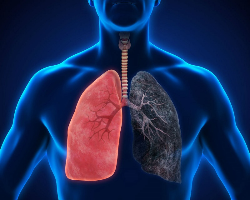 https: img-o.okeinfo.net content 2019 08 13 481 2091379 angka-penderita-makin-meningkat-kenali-dua-tipe-kanker-paru-qYbEpPgQO1.jpg