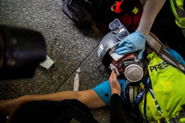https: img-o.okeinfo.net content 2019 10 02 18 2112122 veby-mega-indah-jurnalis-indonesia-yang-liput-demo-hong-kong-buta-akibat-tembakan-polisi-LZs0YaVZ0C.JPG