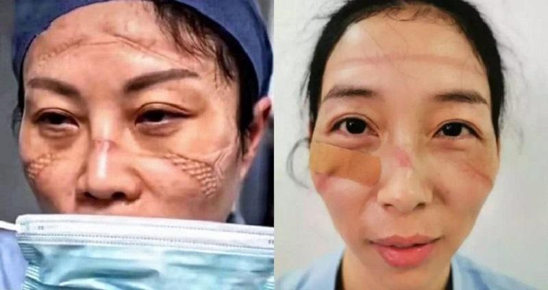 https: img-o.okeinfo.net content 2020 02 14 612 2168535 bekerja-seharian-begini-penampakan-wajah-suster-yang-rawat-pasien-covid-19-V1UhcbwwZU.jpg