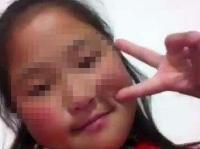 Nilai Ujian Buruk, Bocah Kelas 4 Sekolah Dasar Nekat Bunuh Diri