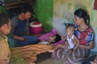 Diduga Gizi Buruk, Tubuh Bocah di Padang Tinggal Tulang Berbalut Kulit