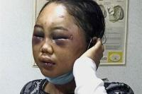 41 Ribu Warga Malaysia Protes Vonis Ringan Majikan Penyiksa TKW Suyanti