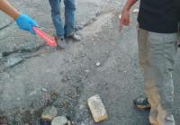 Wajah Bocah 9 Tahun di Depok yang Jadi Korban Aksi Lempar Batu Terancam Operasi Plastik