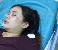 Mahasiswi Korban Tabrakan Angkot dan Motor di Bekasi Dirawat Intensif