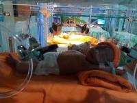 3 Bayi Kembar Ternyata Lahir dengan 2 Plasenta