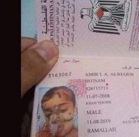 Warganet Terenyuh Melihat Foto Paspor Bocah Palestina dengan Alat Bantu Pernafasan