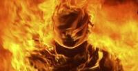 2 Anggota Polisi yang Terbakar di Cianjur Segera di Operasi
