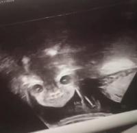 """Terkejut Lihat Hasil USG, Ibu Ini Sebut Janinnya """"Bayi Iblis"""""""