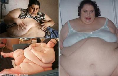 3 Orang Paling Gemuk di Dunia, Bobotnya hingga 635 Kilogram