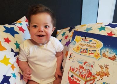 Kisah Bayi Ajaib yang Alami 25 Kali Serangan Jantung dalam Sehari