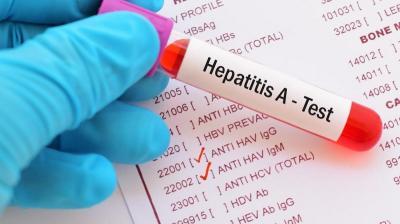 Imbauan Bupati Pacitan untuk Tangkal Merebaknya Virus Hepatitis A
