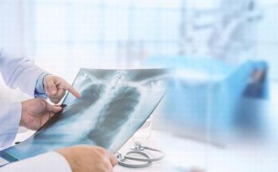 Sama-Sama Penyakit Paru, Kenali Beda Bronkitis dan Pneumonia