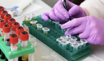 Beda dengan SARS, Kode Genetik Virus Korona Sudah Teridentifikasi dalam Sebulan