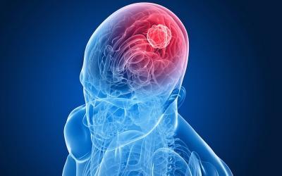 Selain Meningitis yang Diidap Glenn Fredly, 3 Penyakit Otak Lain Ini Juga Berbahaya