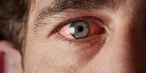 Tipe stroke mata yang satu ini terjadi karena sumbatan pada salah satu dari aliran darah cabang.